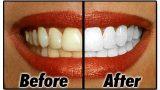 6 Farklı Diş Beyazlatma Yöntemi + Ekstra Bilgiler | Merve SEVİL